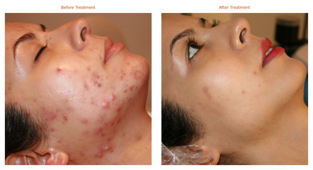Which Type of Acne Scar Treatment will give Best Results?