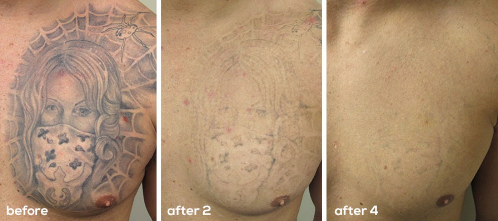 Laser tattoo removal the effective and safe way to get for How to get rid of a tattoo at home