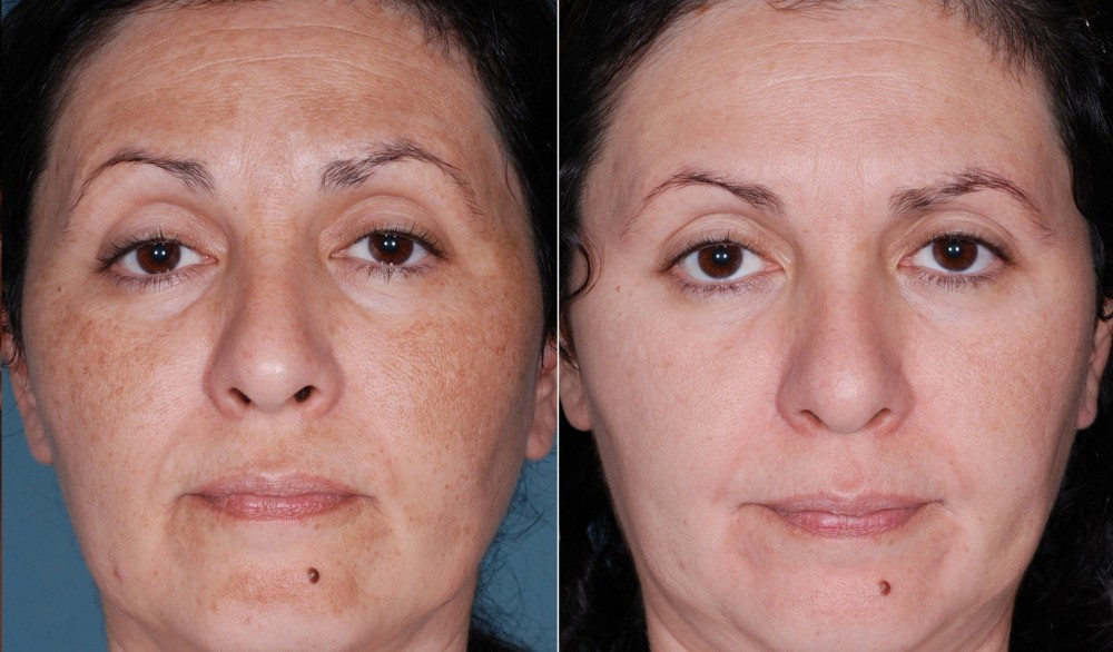 What To Expect From Chemical Peel?