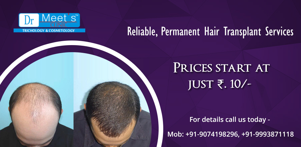 Doctor Recommended Hair Loss Treatment Is Effective And Reliable