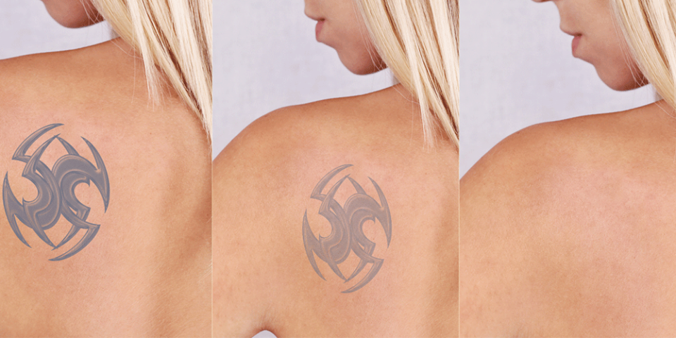 Top Most Frequently Asked Questions From Tattoo Removal Patients