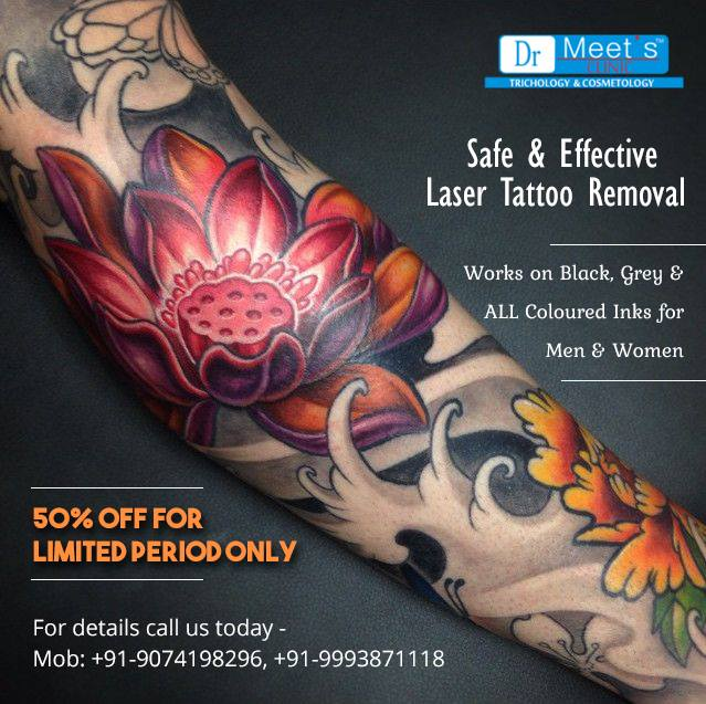 Laser Tattoo Removal Or Tattoo Removal Cream: Which One Is Better?