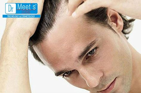 What Is Non-Surgical Hair Replacement?