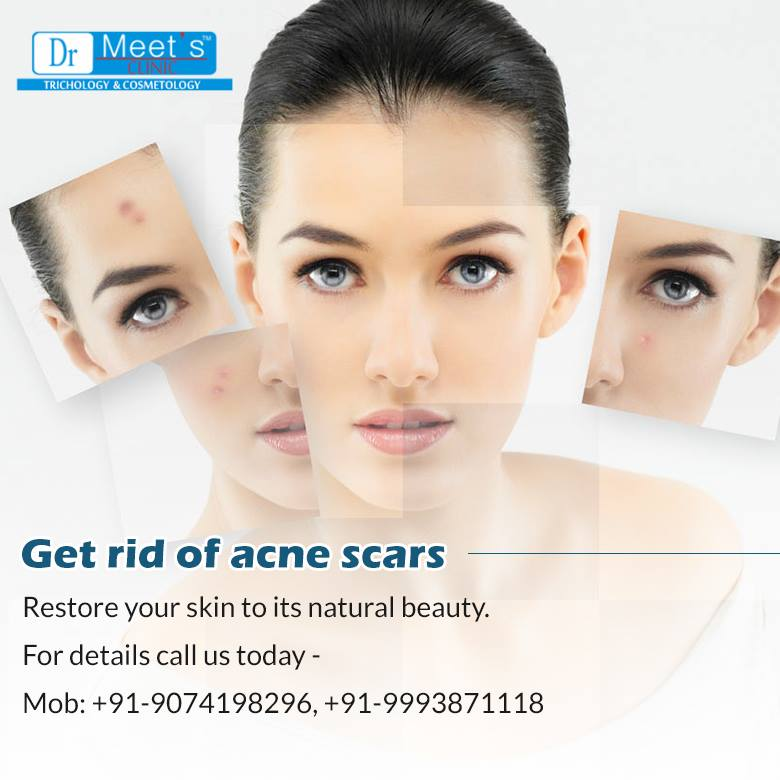 Consult a Specialist For Acne Scar Treatment