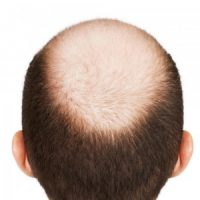 male-pattern-baldness2-300x300