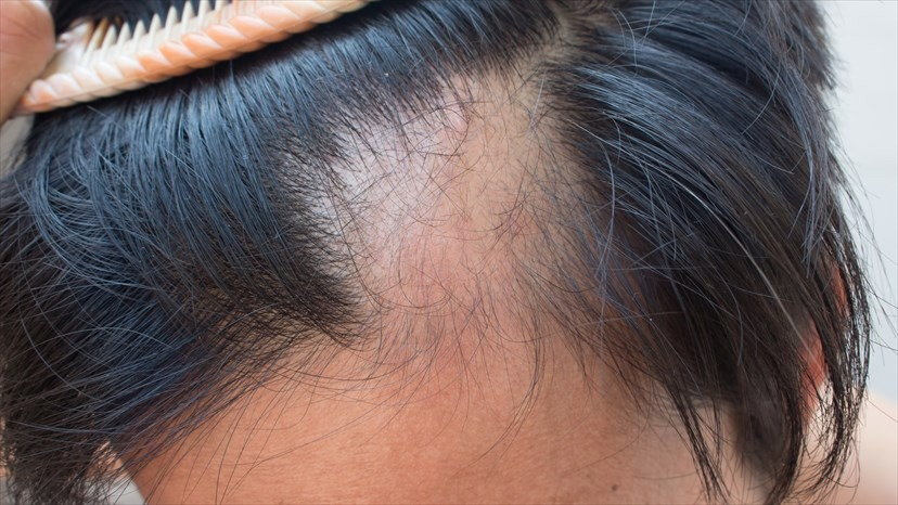 Alopecia: Best Treatments Available