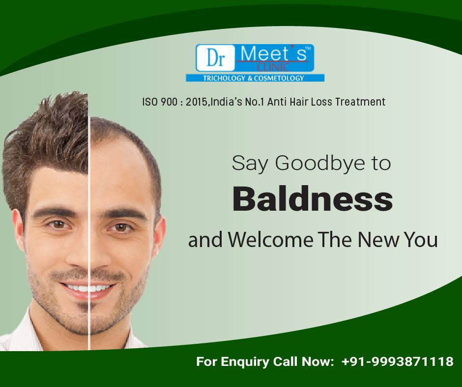 Is a Hair Transplant Worth Its Cost?