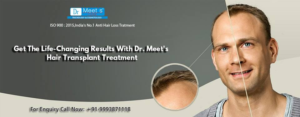 Non Surgical Hair Replacement India