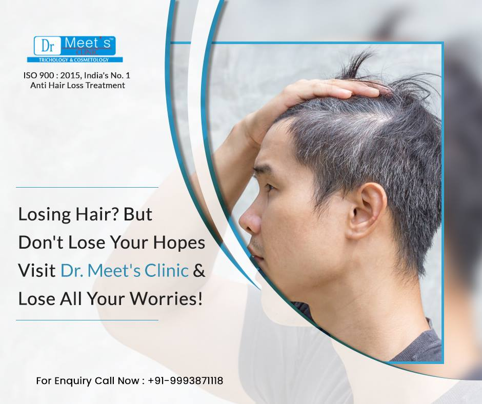 Successful Hair Fall Treatment to Stop Your Hair Loss