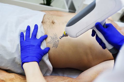 The Myths Regarding Laser Tattoo Removal