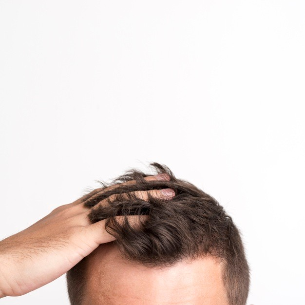 The Major Causes of Hair Loss and Hair Fall