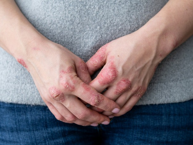 Psoriasis: Non-Contagious But Chronic