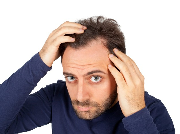 Medical and Non-Medical Causes With Remedies For Dandruff
