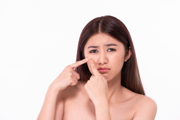 Acne Scars: Types And Cures