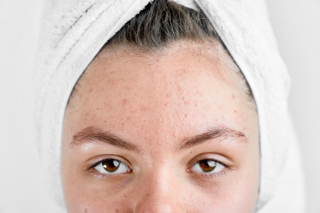 Acne Treatment: Mild and Severe Scarring