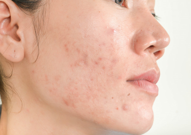 Acne Scars: Fight The Frustration
