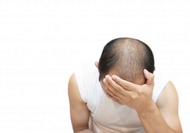 Common Hair Diseases Leading To Baldness