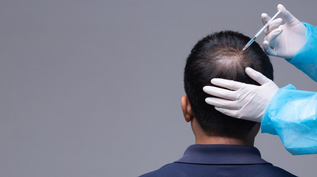 Which Hair Transplantation is Best For You?