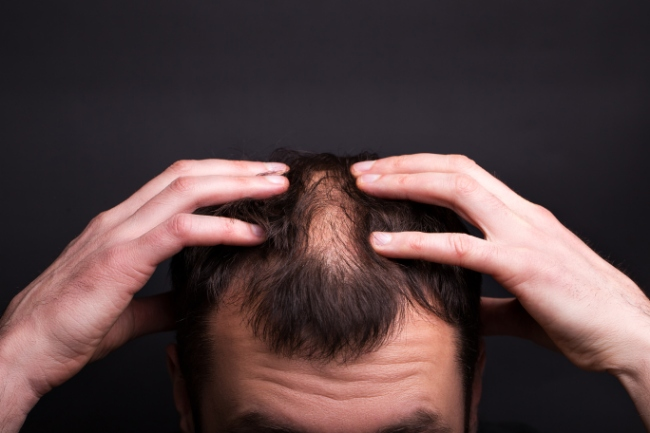 Skin Specialist Can Help You Find a Cure for Alopecia