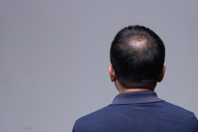 Consulting a dermatologist for Hair Loss Treatment