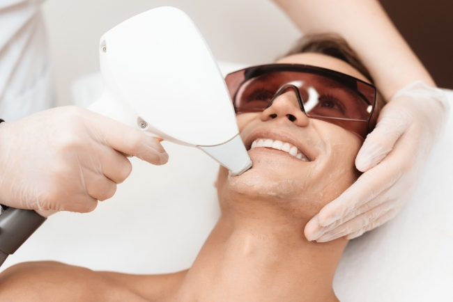 Laser Hair Removal Treatment for Men Explained