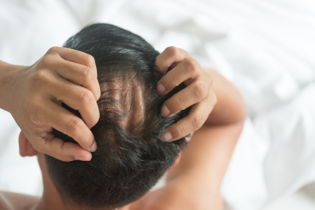 Know The Type & Causes Of  Hair Loss  Before Going Ahead With The  Treatment