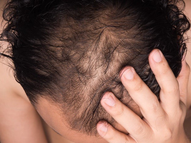 Causes Of Hair Fall: Hair Transplant in Indore Is A Good Decision To Make