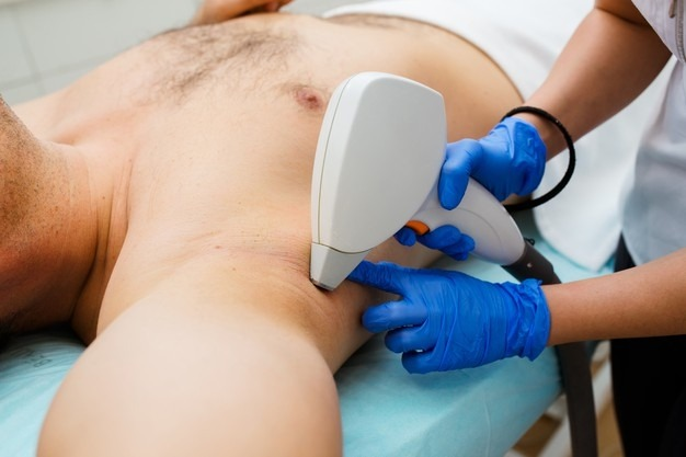 Top Reasons For Men To Consider Hair Removal